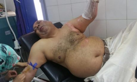 حزب الأصالة والمعاصرة يخرج عن صمته عقب إضرام أحد برلمانييه النار في جسده