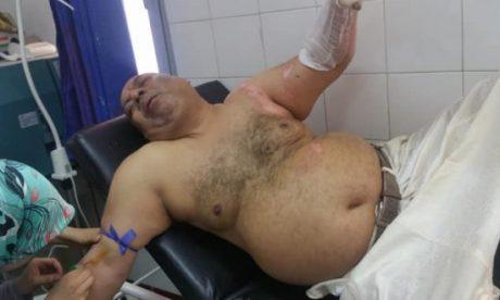برلماني من حزب الأصالة والمعاصرة يضرم النار في جسده