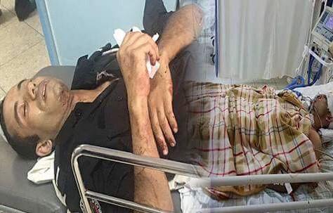 """سلطات الحسيمة: """"حالة الأشخاص الثلاثة المتواجدين بالمستشفى العسكري بالرباط للعلاج حالتهم مستقرة""""."""