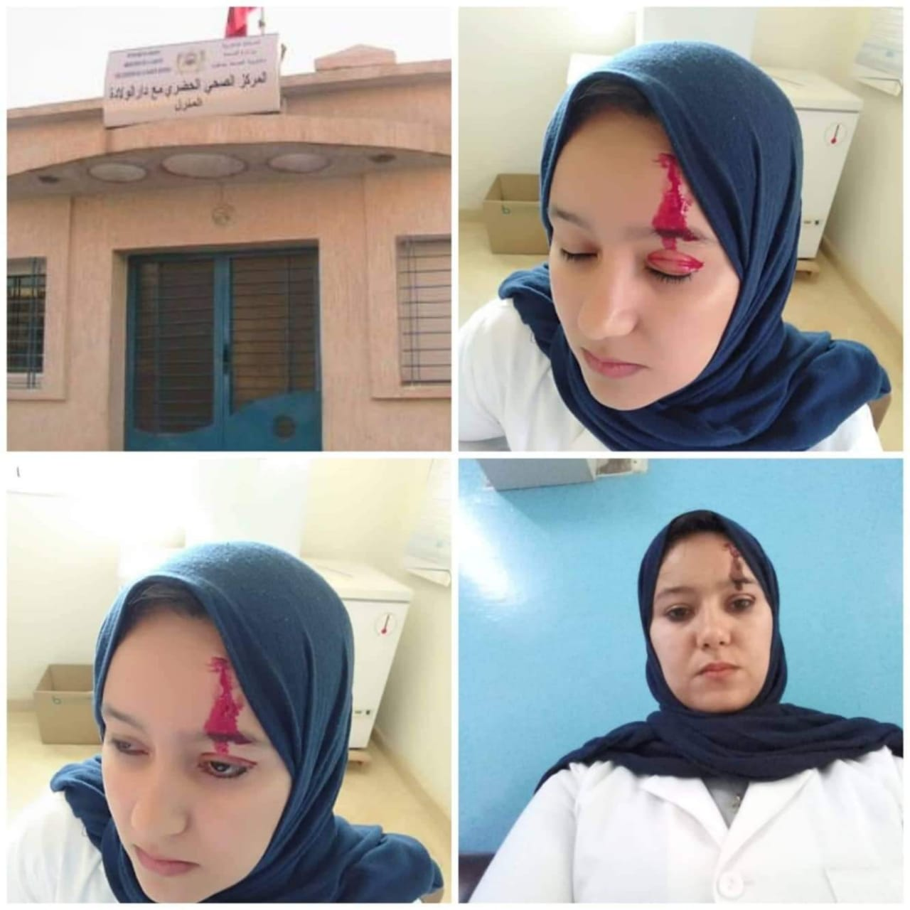 """اعتداء على ممرضة في مركز صحي بـ """"صفرو"""" والأطر الصحية تُدين"""