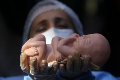 حزب العدالة والتنمية يرفض فتح النقاش من جديد حول قانون الإجهاض