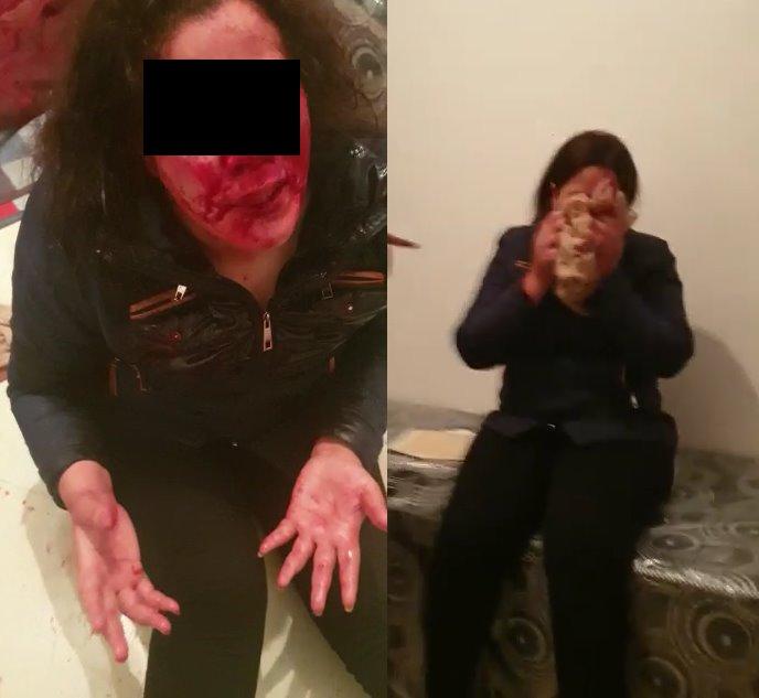 اعتقال أشخاص عرضوا سيدة للعنف بدعوى الخيانة الزوجية بالبيضاء